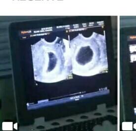 Rejane Santos ultrassom da gravidez anembrionária