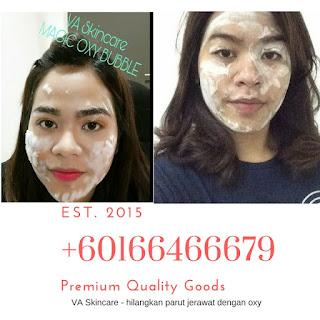 Va Skincare - 0166466679