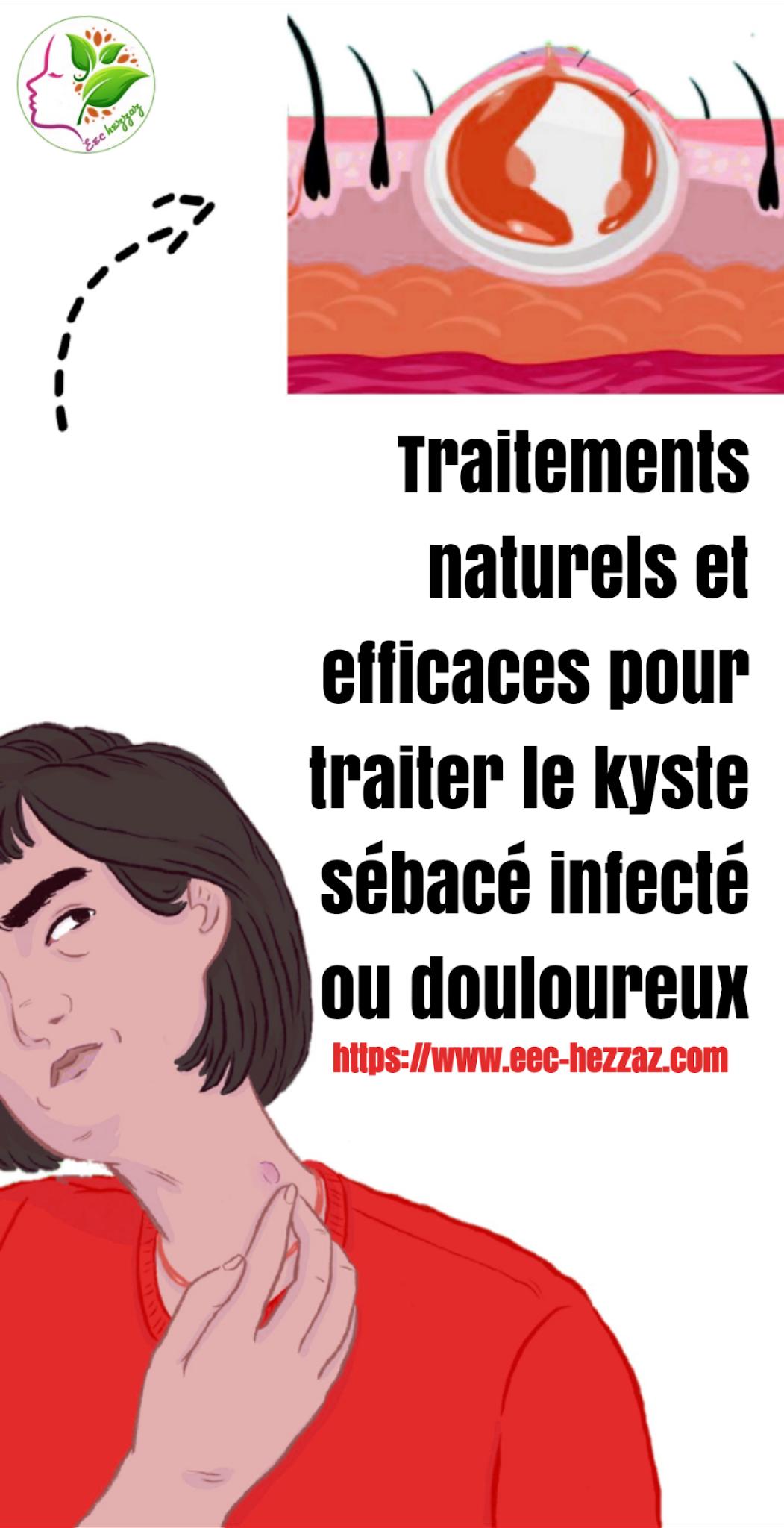 Traitements naturels et efficaces pour traiter le kyste sébacé infecté ou douloureux