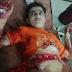 موٹرسائکل سوار نوجوان کا پیٹ پتنگ ڈور سے کٹ گیا