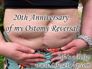 stomach scars from ostomy reversal