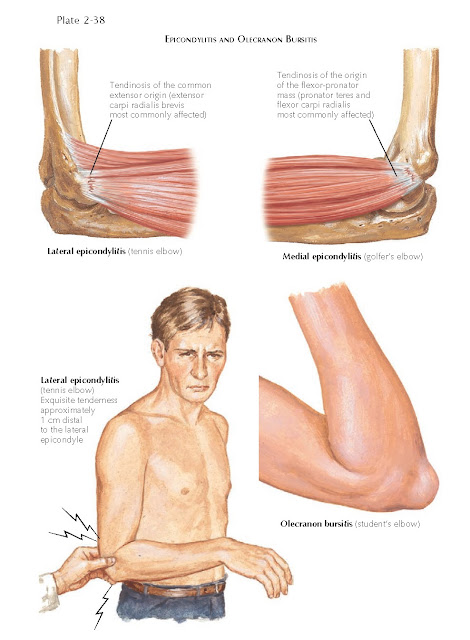 EPICONDYLITIS AND OLECRANON BURSITIS