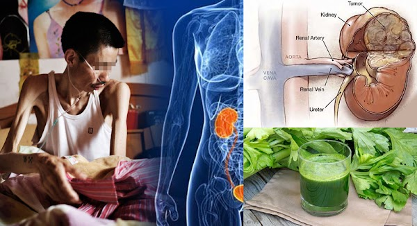 Don't rush to wash your blood, this is the natural way to wash your kidneys, easy and cheap!