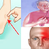 One Month Before Stroke, Your Body Will Send You These Warning Signs