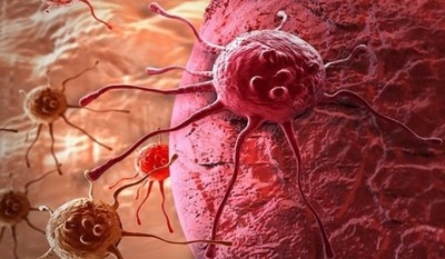 طريقة غير متوقعة تساعد في محاربة السرطان!