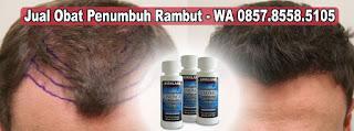 Jual Minoxidil Hair Treatment Penumbuh Rambut Ampuh