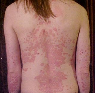 Psoriasis typically waxes and wanes with periods of relapse and remission.