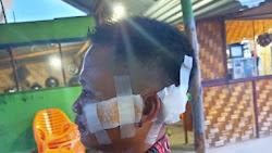 Kasus Pengeroyokan Di Warung Tuak, Tangkap Dan Penjarakan Semua Pelaku