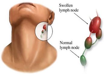 Cara Membedakan Benjolan di Leher Karena Limfoma atau Infeksi