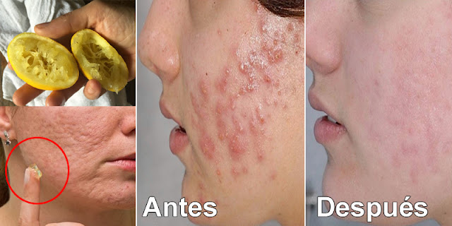 12 Home Remedies To Get Rid Of Acne, Pimples And Dark Spots At Home!