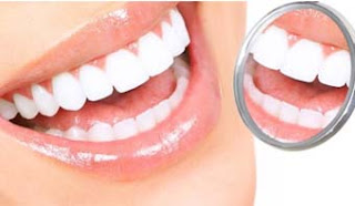 تجربتي مع عدسات الاسنان