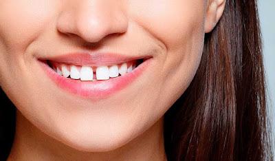 Răng thưa phải làm sao khắc phục?