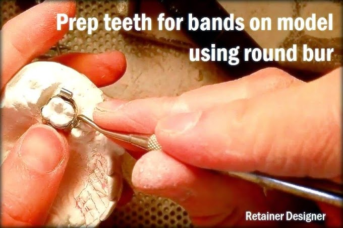 ORTHODONTIC BANDS: Prep teeth for bands on model using round bur