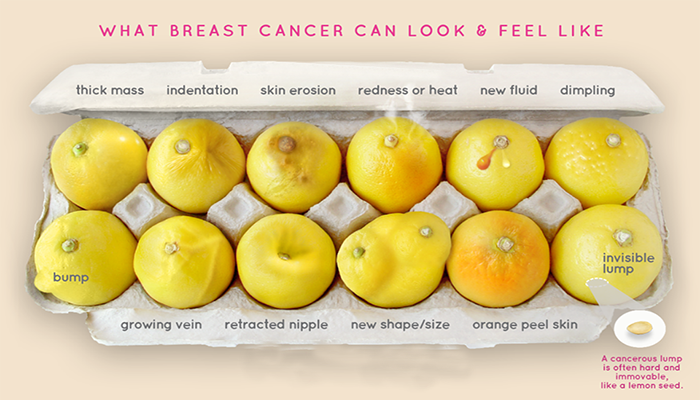 This Viral Lemon Photo Is Helping Women Detect Breast Cancer