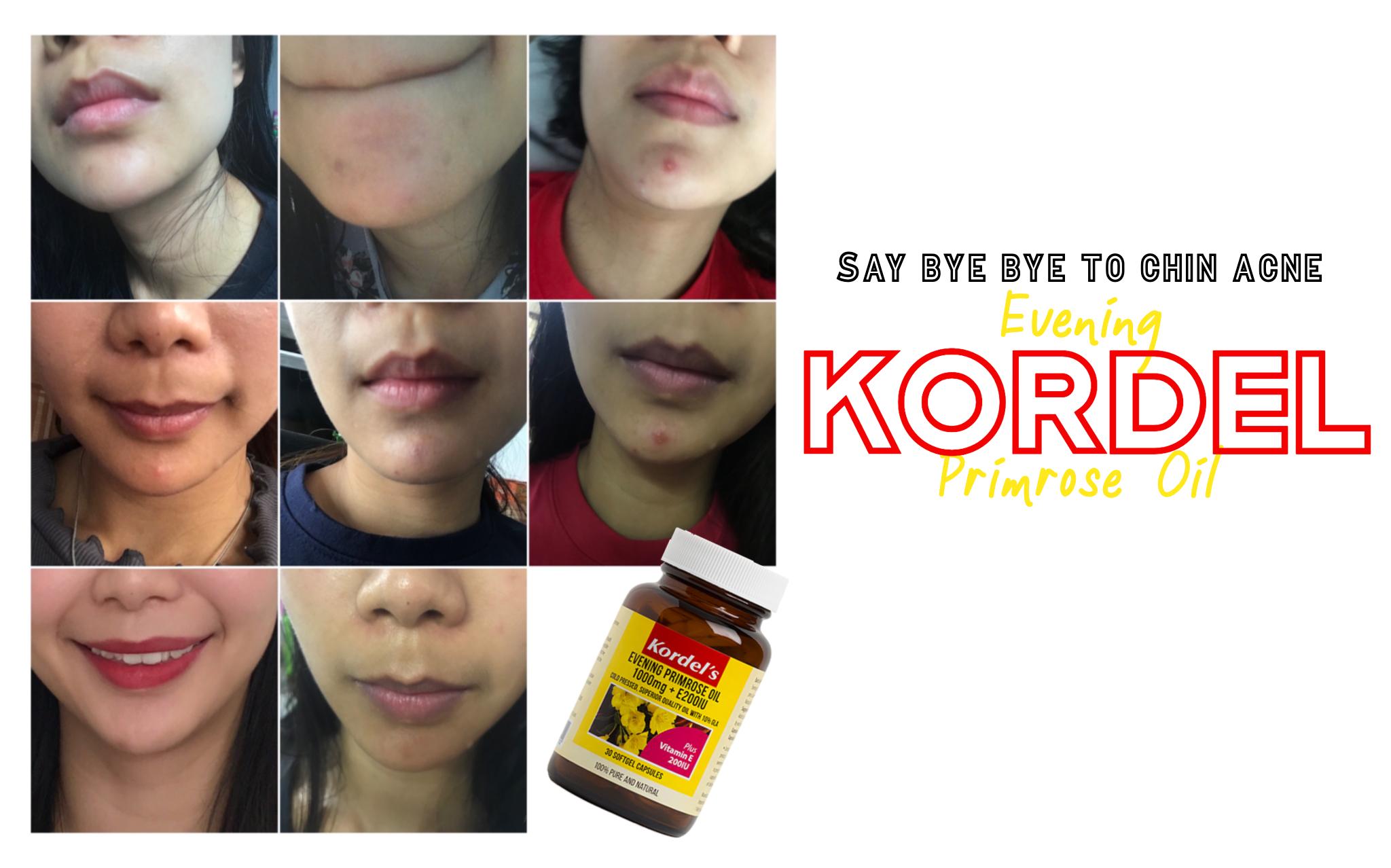 kordel evening primrose oil hormonal chin acne cure treatment
