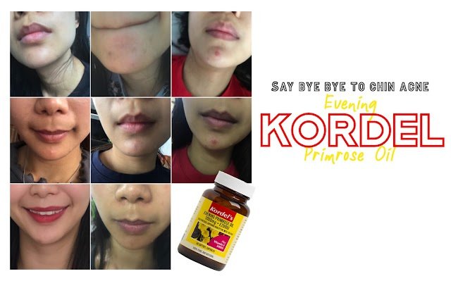 Get rid of chin hormonal acne with Kordel's Evening Primrose Oil
