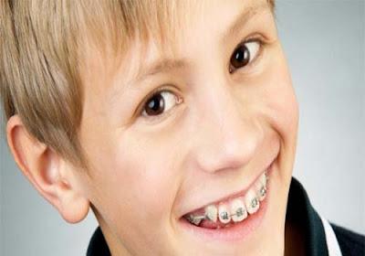 Pasang Behel Gigi Yang Aman Untuk Anak Remaja