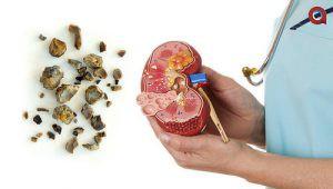 Penyakit Kencing Batu
