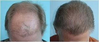 saç ekimi öncesi ve sonrası foto 26