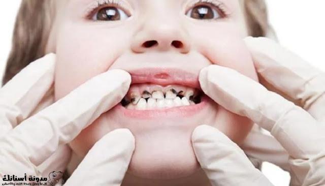كيفية علاج تسوس الأسنان بشكل طبيعي.