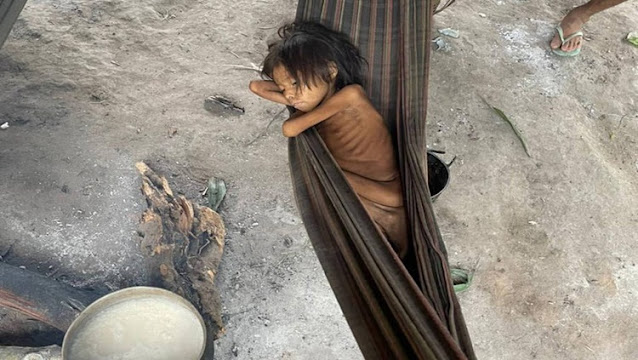 Índios yanomamis estão morrendo desnutridos por falta de assistência médica