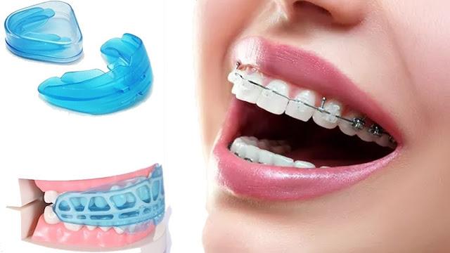 Ikuti 7 Langkah Ini Untuk Memasang Behel Gigi Supaya Rapi