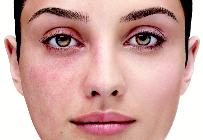 5 Best Ways To Deal With And Cure Rosacea