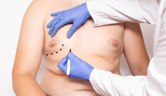 How cost effective does the gynecomastia surgery is?