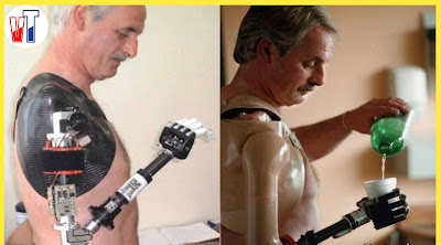Worlds-First-Bionic-Arm