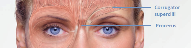 Botox can be used to relax the muscles associated with frowning.