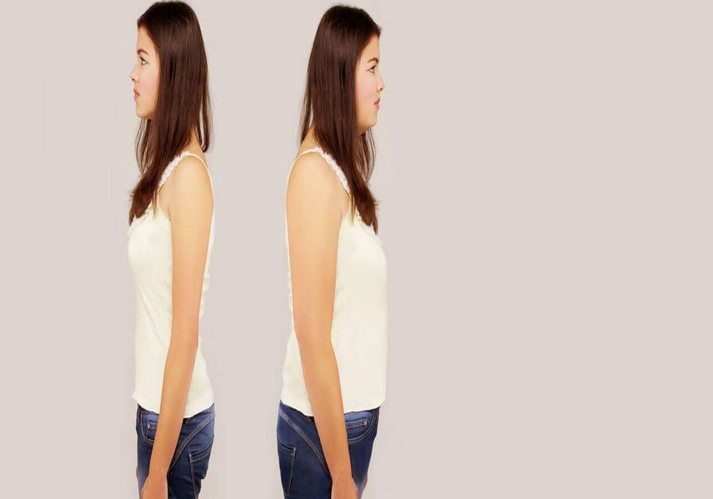 Understanding Your Weight Gain Hormones