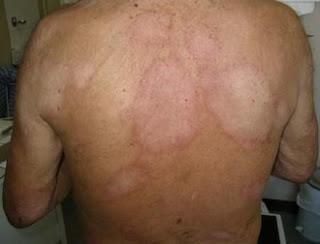 Homens são mais atingidos pela hanseníase no Brasil; menor cuidado com a saúde é um dos motivos