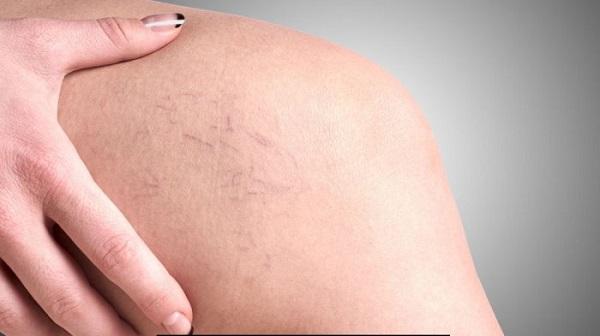 Cara Menghilangkan Varises di belakang lutut