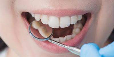 5+ Cara Cepat Dan Ampuh Mengatasi Gigi Ngilu dan Sakit Secara Alami