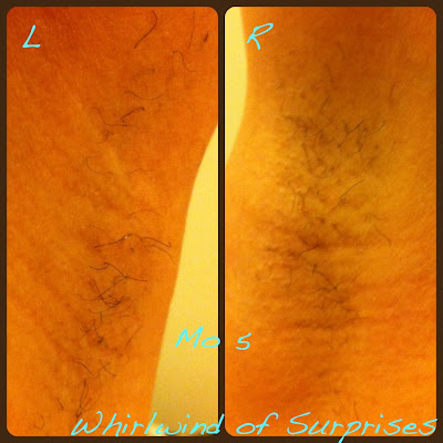 Tria laser treatment results