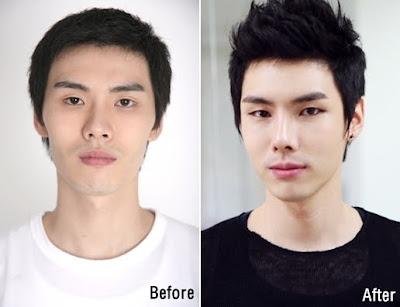 ID Hospital Korea Plastic Surgery: 8월 2013