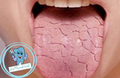 جفاف الفم يحدث للعديد من الاشخاص, ولكن ما هي اسباب جفاف الفم؟ وما هو علاج جفاف الفم؟ وكيفية الوقاية منه؟, في هذا الموضوع سوف نتعرف علي طرق العلاج المتاحة والمختلفة, ،علاج جفاف الفم ،اسباب جفاف الفم ،سبب جفاف الفم ،اسباب جفاف الفم والشفايف ،اسباب جفاف الفم اثناء النوم ،ما سبب جفاف الفم ،اسباب جفاف الفم عند الغضب ،اسباب نشفان الفم ،ما هو سبب جفاف الفم ،اعراض جفاف الفم ،اسباب جفاف الفم عند الاستيقاظ من النوم ،سبب نشفان الفم ،اسباب جفاف اللسان اثناء النوم ،ماهي اسباب جفاف الفم ،ما اسباب جفاف الفم ،اسباب جفاف الفم عند النوم ،سبب جفاف الفم اثناء النوم