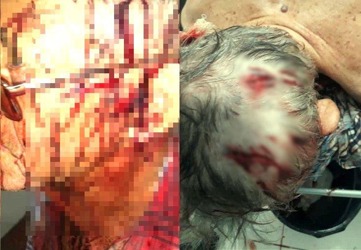 COVARDIA: Casal de idosos é espancado na zona rural do município de Rio do Antônio após ter casa invadida