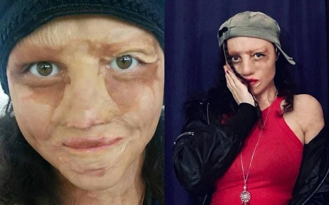 Как выглядит девочка, в спасение которой никто не верил, спустя 18 лет после страшного пожара в Москве