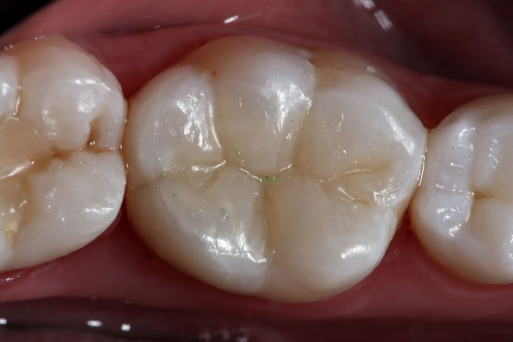 Resina Dentária