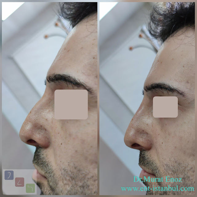 Non-surgical rhinoplasty in Istanbul - The 5 Minute Nose Job in Istanbul - Non-surgical nose job - Nose filler injection Turkey - Injectable nose job - Liquid rhinoplasty