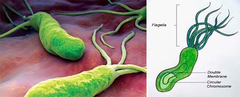 an overview of helicobacter pylori Topic overview helicobacter pylori is a type of bacteria that is a major cause of stomach (gastric) and upper small intestine (duodenal) ulcers.