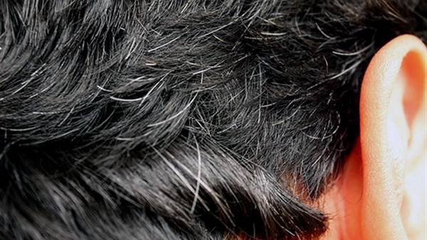 Gray White Hair Causes And 12 Best Natural Home Remedies
