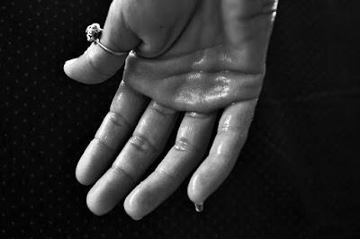 Apa penyebab tangan anda berkeringat?