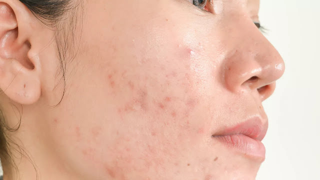 leche limpiadora facial