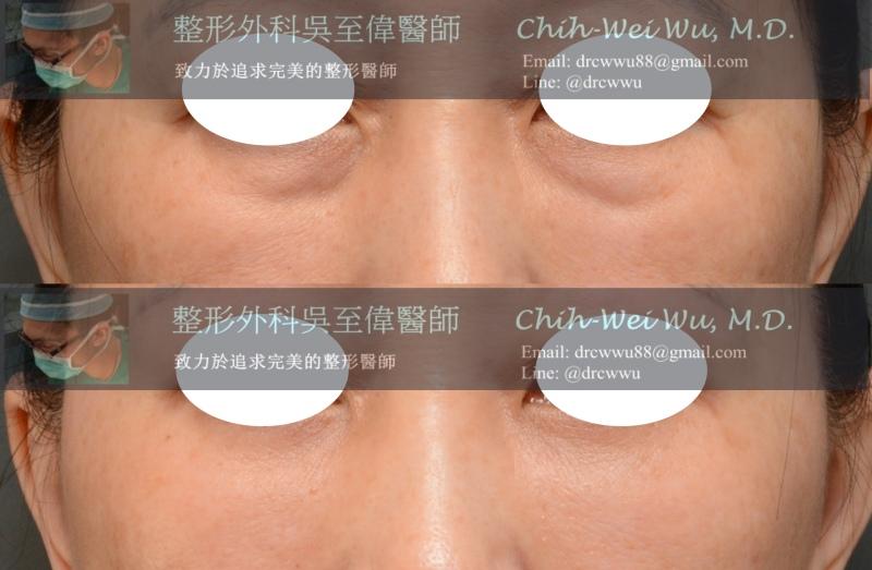 2020年3月最新眼袋案例:內開無痕眼袋+自體脂肪填補淚溝(眼袋手術權威吳至偉醫師)