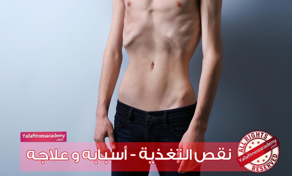 نقص التغذية - أسبابه و علاجه