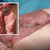 Wanita ini hampir kehilangan kaki yang dijangkiti bakteria pemakan daging selepas mencukur bulu kemaluan
