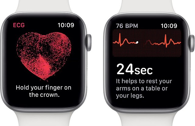 Apple WatchOS brings new ECG application in Europe and more