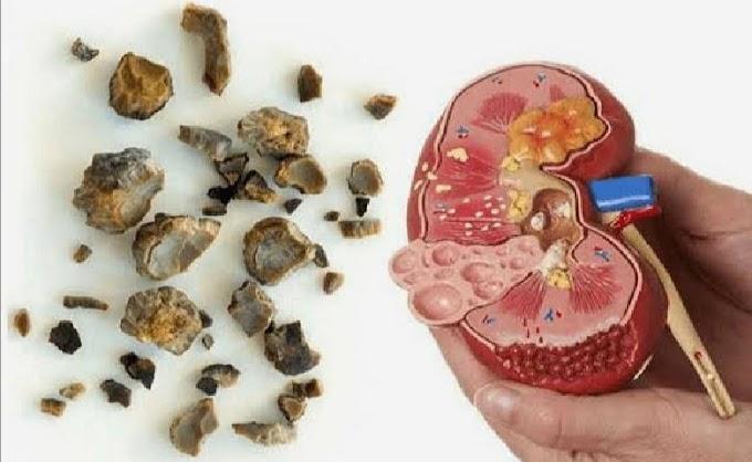 Penyebab Batu Ginjal dan Cara Mencegahnya